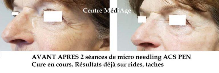 micro-needling5_bergamote_hauteville-les-dijon
